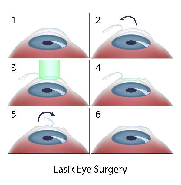 LASIK Eye Surgery San Diego